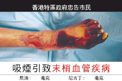 Foot Cancer Chinese
