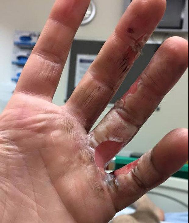 BURNED: Alex's injuries
