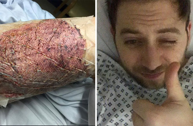 NASTY: Alex suffered serious burns to body when the device set alight