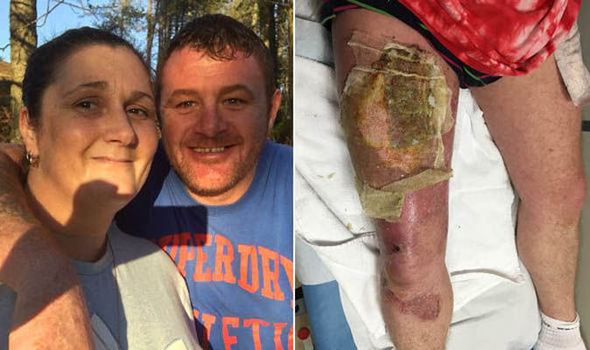 The 47-year-old spent 10 days in hospital
